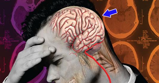 đau nửa đầu bên trái