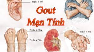 1.4 1 300x167 Đề phòng bệnh gout khi tết đến
