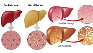Cách dự phòng bệnh gan nhiễm mỡ