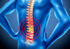 Điều trị thoái hóa cột sống thắt lưng