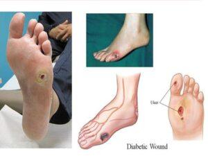 Tỉ lệ biến chứng bàn chân phải cắt cụt chi ở bệnh nhân đái tháo đường ngày càng cao