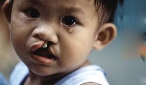 SUT MOI 300x176 Cần lưu ý điều gì để tránh sứt môi,hở hàm ếch cho trẻ.