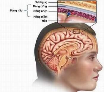 viêm màng não cầu khuẩn