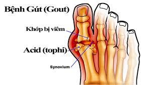 benh gout Xét nghiệm bệnh Gout