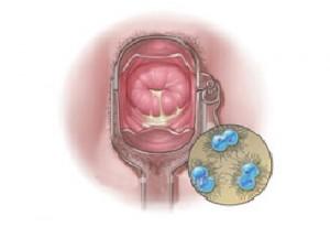 benh lau dieu tri 300x206 Phương pháp điều trị bệnh lậu