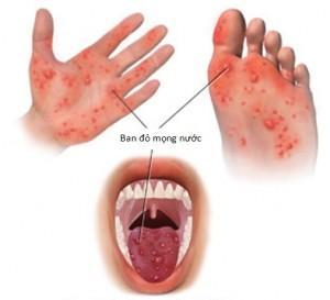 benh tay chan mieng 300x273 Phân biệt bệnh lí tay chân miệng và thủy đậu.