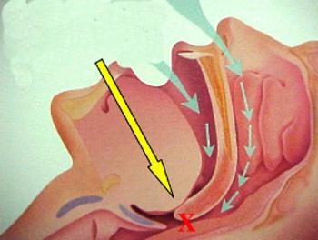 Cấu trúc của hội chứng ngưng thở khi ngủ