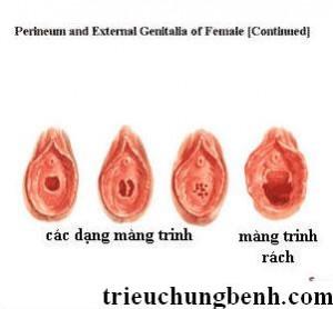 Các dạng màng trinh