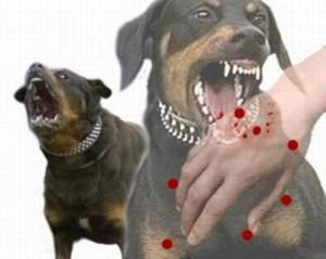 Sơ cứu khi bị chó cắn