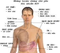 Triệu chứng của HIV