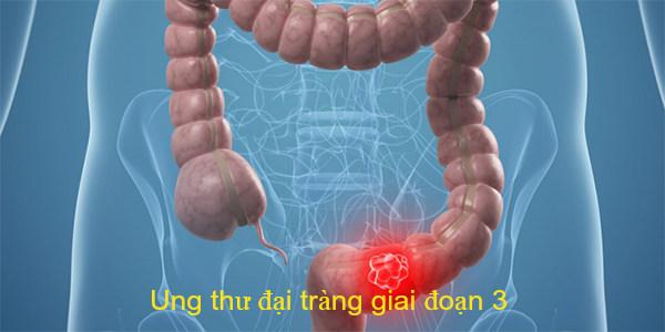 Ung thư đại tràng và cách điều trị
