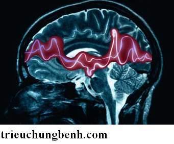 dong kinh Các thể bệnh động kinh ở trẻ em