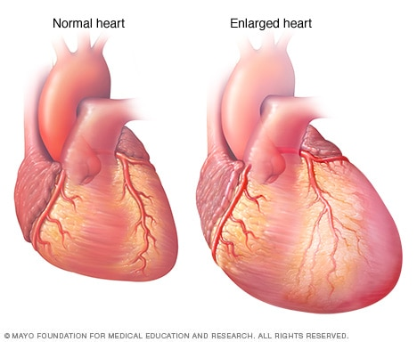 Enlarged heart, in heart failure - Mayo Clinic