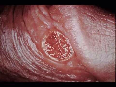 Giang mai là gì? Nguyên nhân và biểu hiện của bệnh - VIETSKIN