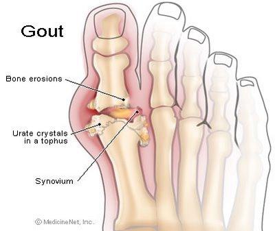 Hình ảnh minh họa bệnh gout
