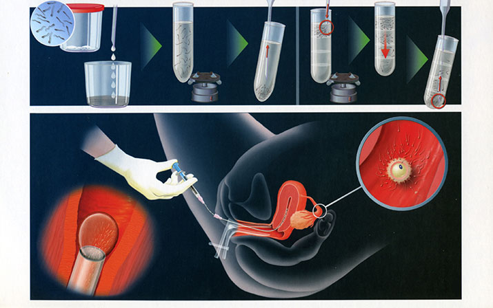 iui artificial insemination Thụ tinh trong ống nghiệm