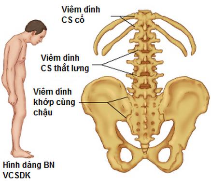 Kết quả hình ảnh cho viêm cột sống dính khớp