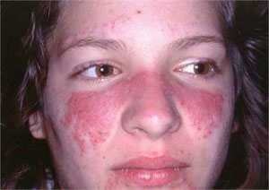 lupus do 300x212  BỆNH LUPUS BAN ĐỎ HỆ THỐNG (Systemic lupus erythematosus  SLE)