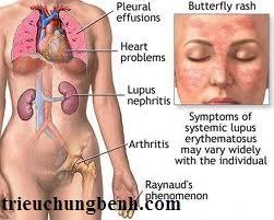 lupus Chế độ ăn cho bệnh nhân Lupus