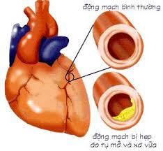mach vanh Triệu chứng  bệnh mạch vành