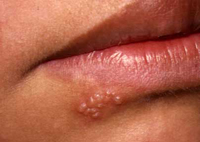mun rop o moi va cach chua tri tai nha Dấu hiệu ban đầu của nhiễm Herpes miệng