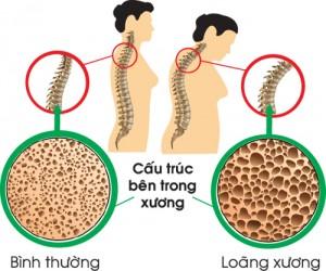 nguyen nhan va cach dieu tri benh loang xuong o nguoi cao tuoi 2 300x250 Cách phòng ngừa loãng xương