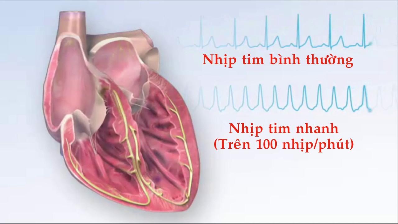 Nhịp tim bình thường là bao nhiêu? Cách chuẩn đoán bệnh từ nhịp tim