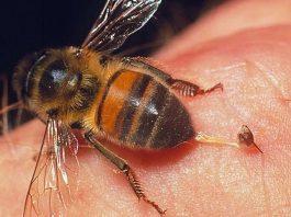 Xử trí khi bị ong đốt