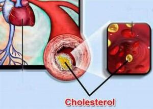 Bệnh tim mạch ở phụ nữ