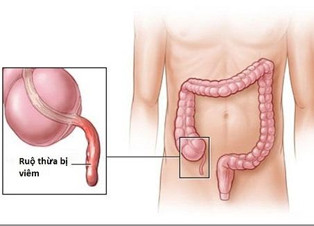 Viêm ruột thừa có thể gây vỡ ruột