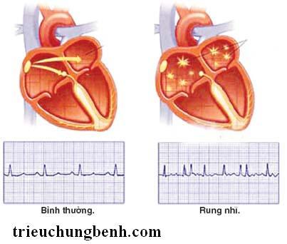 rung nhi Rung nhĩ nguyên nhân gây tắc mạch