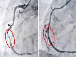 Hình ảnh động mạch vành sau khi được tái tưới máu