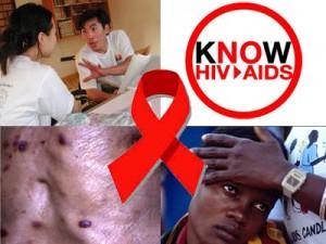 trieu chung hiv