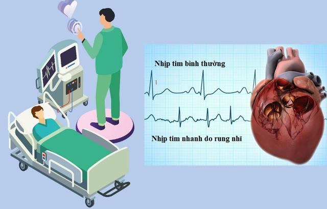 Triệu chứng tim đập nhanh là bệnh gì và cách giảm nhịp tim | Báo ...