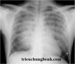 Bệnh phù phổi cấp