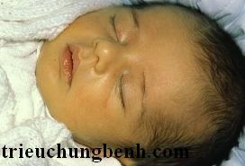 vang da so sinh Vàng da ở trẻ sơ sinh