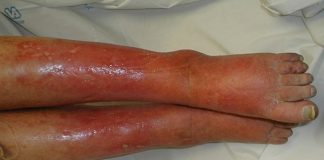 Điều trị và phòng bệnh viêm mô tế bào