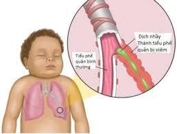 Kinh nghiệm chăm bé bị viêm phế quản