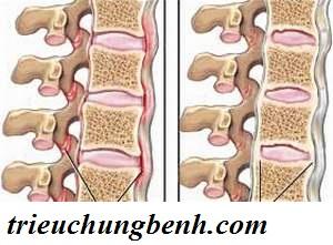 viem cot song dinh khop Viêm cột sống dính khớp có thể gây tàn tật suốt đời ( kì 1)